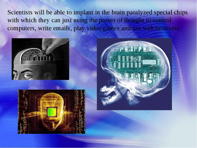 Scientists will be able to implant in the brain paralyzed special chips with...
