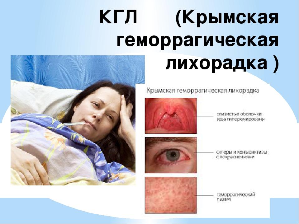 КГЛ (Крымская геморрагическая лихорадка )