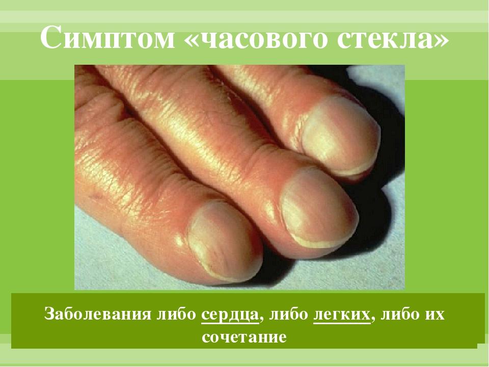 Симптом «часового стекла» Причина: недостаточность перефирического кровотока...