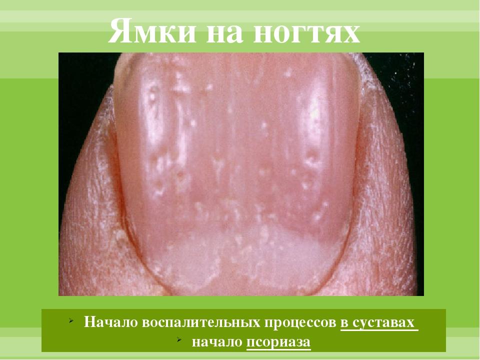 Ямки на ногтях Начало воспалительных процессов в суставах начало псориаза