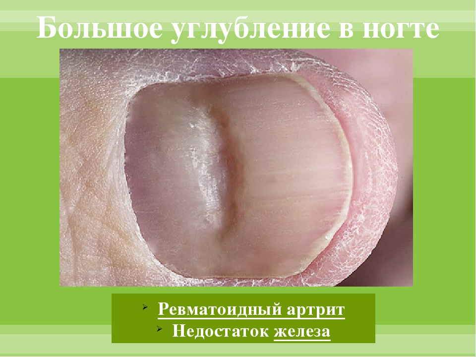 Большое углубление в ногте Ревматоидный артрит Недостаток железа