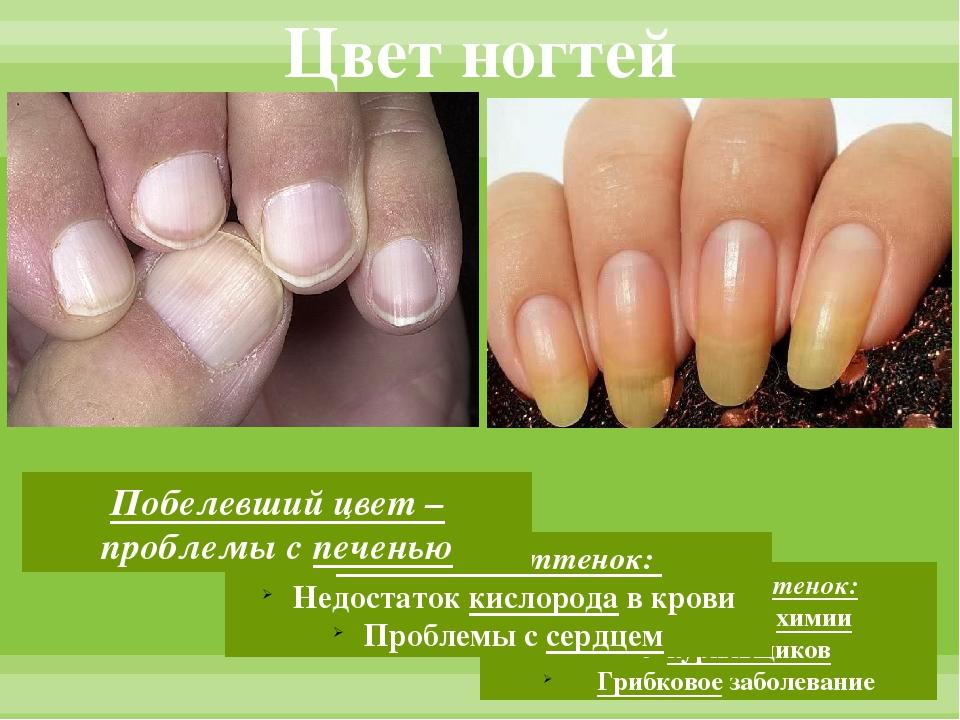 Цвет ногтей Желтоватый оттенок: Воздействие химии У курильщиков Грибковое заб...