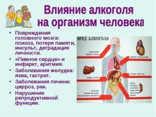 Повреждения головного мозга: психоз, потеря памяти, инсульт, деградация лично