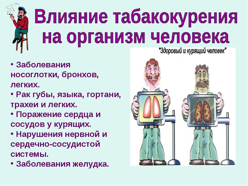 Заболевания носоглотки, бронхов, легких. Рак губы, языка, гортани, трах...