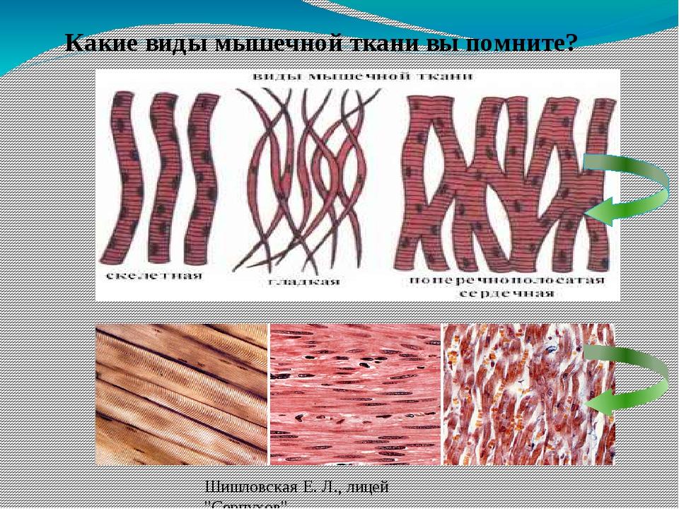 """Какие виды мышечной ткани вы помните? Шишловская Е. Л., лицей """"Серпухов"""""""