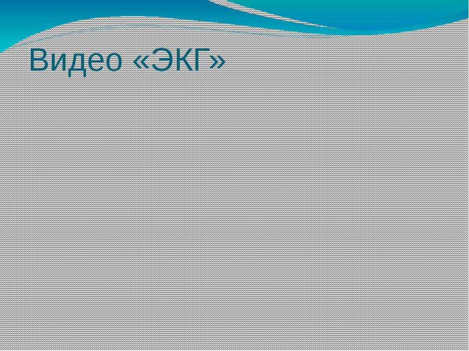 Видео «ЭКГ»