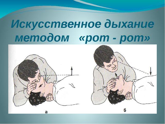 Искусственное дыхание методом «рот - рот»