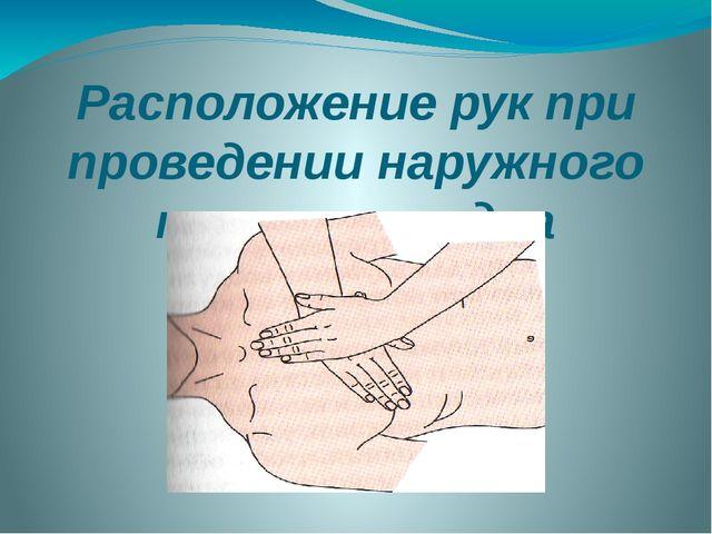 Расположение рук при проведении наружного массажа сердца