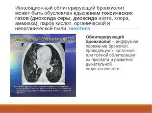 Ингаляционный облитерирующий бронхиолит может быть обусловлен вдыханием токси