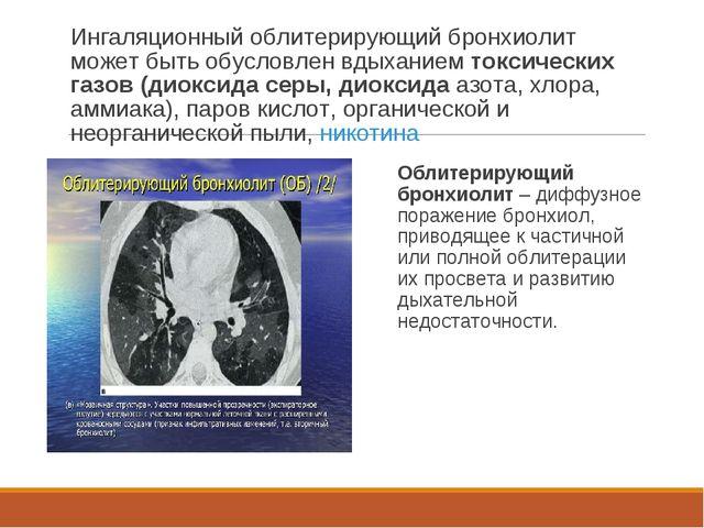 Ингаляционный облитерирующий бронхиолит может быть обусловлен вдыханием токси...