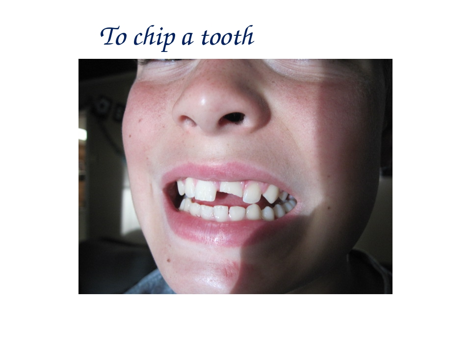 To chip a tooth