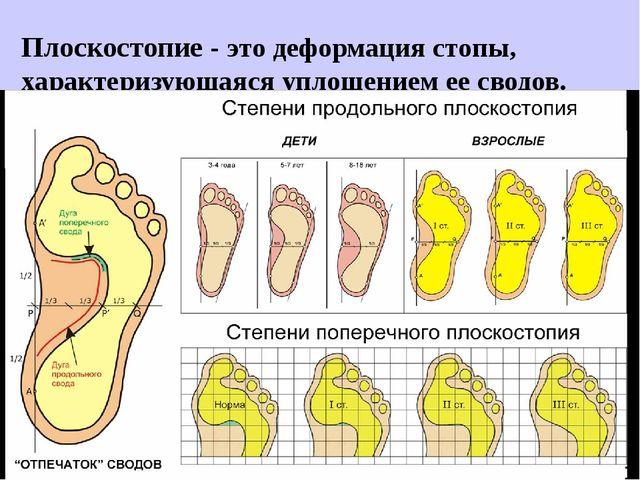 Плоскостопие - этодеформациястопы, характеризующаясяуплощением еесводов.