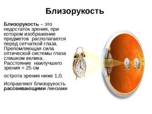 Близорукость Близорукость – это недостаток зрения, при котором изображение пр