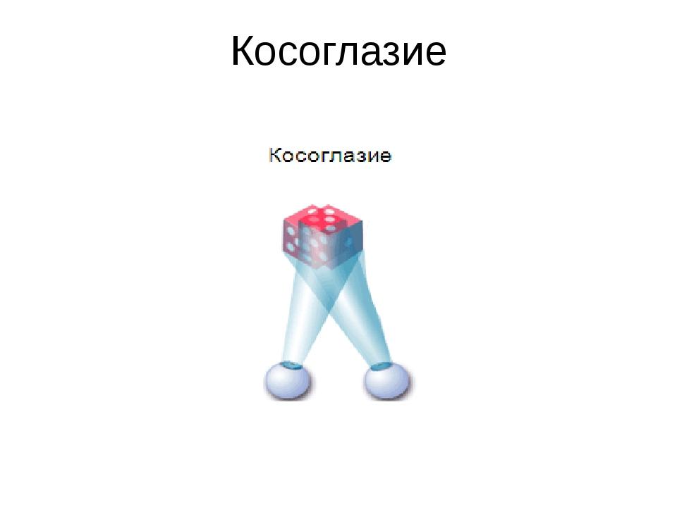 Косоглазие