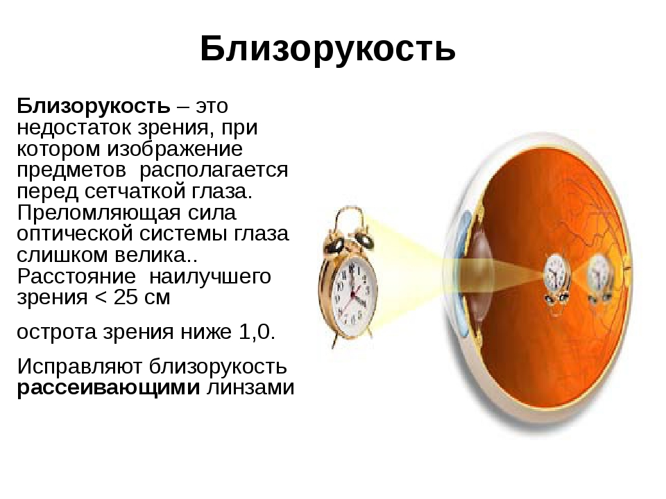 Близорукость Близорукость – это недостаток зрения, при котором изображение пр...