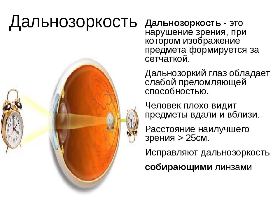 Дальнозоркость Дальнозоркость - это нарушение зрения, при котором изображение...