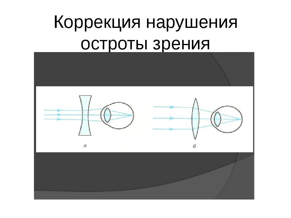 Коррекция нарушения остроты зрения