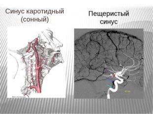 Синус каротидный (сонный) Пещеристый синус
