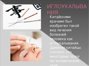 ИГЛОУКАЛЫВАНИЯ Китайскими врачами был изобретен такой вид лечения болезней че