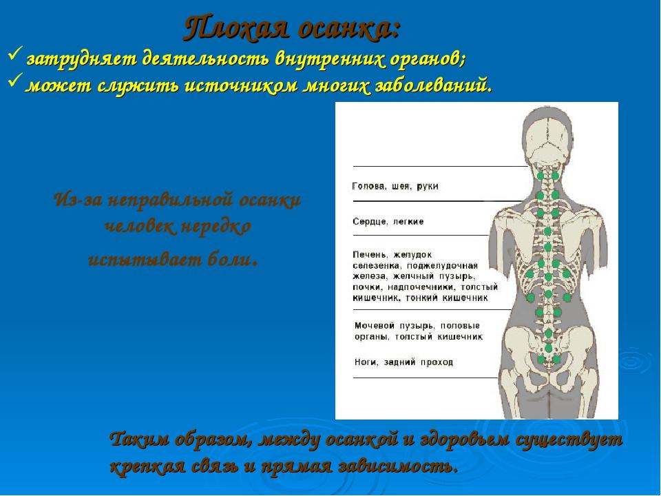 Плохая осанка: затрудняет деятельность внутренних органов; может служить исто...