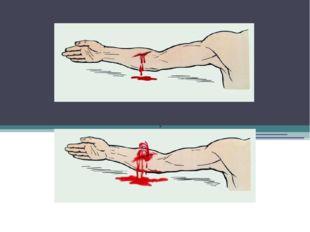Основные виды Венозное кровотечение Артериальное кровотечение