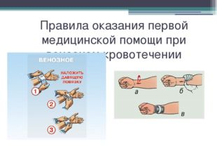 Правила оказания первой медицинской помощи при венозном кровотечении