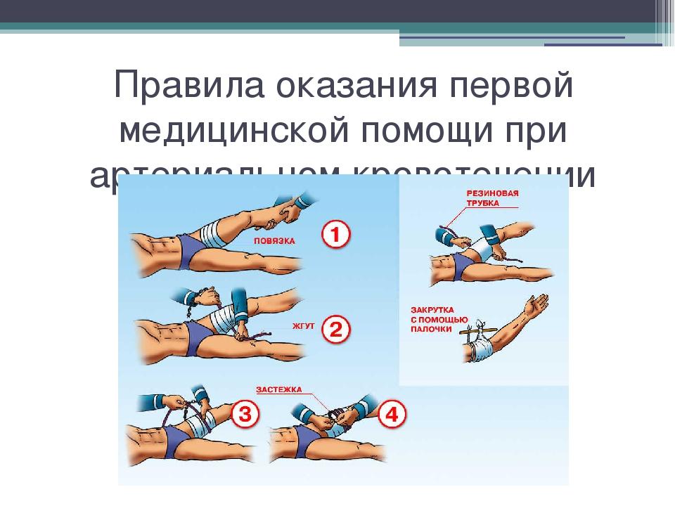 Правила оказания первой медицинской помощи при артериальном кровотечении