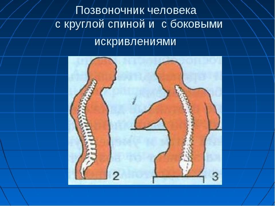 Позвоночник человека с круглой спиной и с боковыми искривлениями