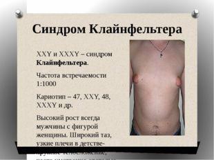 Синдром Клайнфельтера ХХY и XXXY – синдром Клайнфельтера. Частота встречаемос