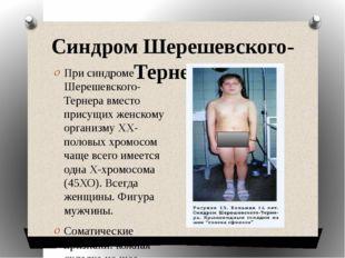 Синдром Шерешевского-Тернера При синдроме Шерешевского-Тернера вместо присущи
