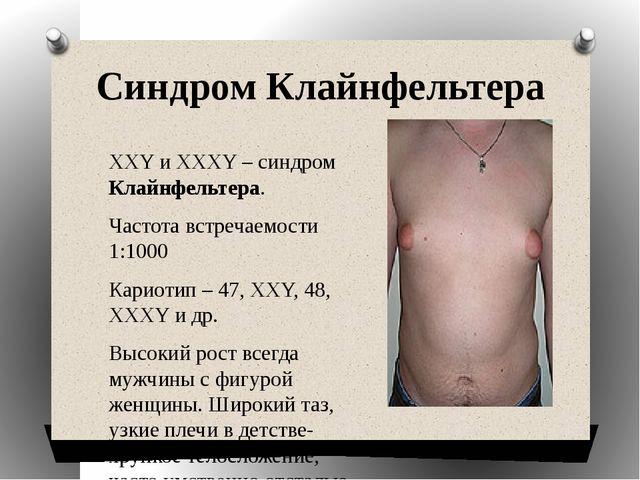 Синдром Клайнфельтера ХХY и XXXY – синдром Клайнфельтера. Частота встречаемос...