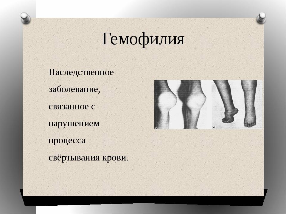 Гемофилия Наследственное заболевание, связанное с нарушением процесса свёртыв...