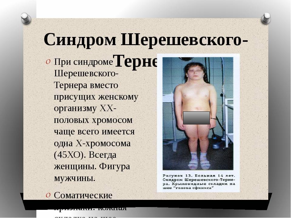 Синдром Шерешевского-Тернера При синдроме Шерешевского-Тернера вместо присущи...