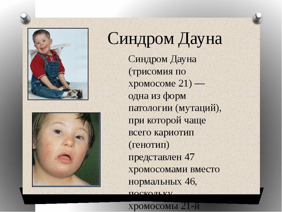 Синдром Дауна Синдром Дауна (трисомия по хромосоме 21) — одна из форм патоло...