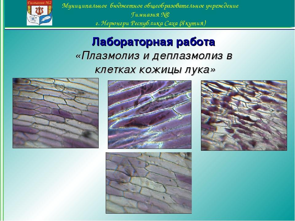 Лабораторная работа «Плазмолиз и деплазмолиз в клетках кожицы лука»