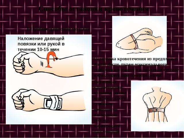 Способы остановки кровотечения 1.Прямое давление на рану. Наложение давящей...