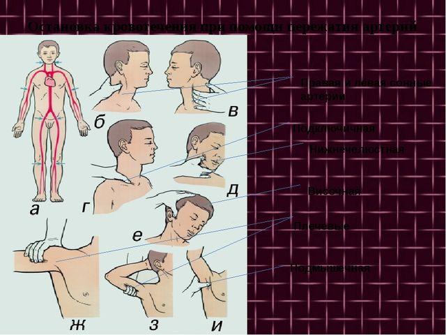 Остановка кровотечения при помощи пережатия артерий Височная Нижнечелюстная...