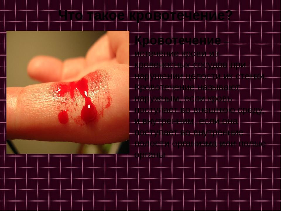 Кровотечение – истечение крови из кровеносных сосудов при нарушении целости...
