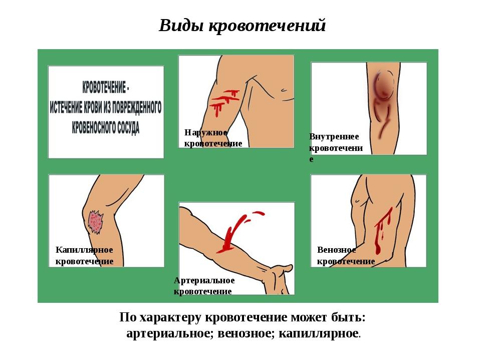 Виды кровотечений Артериальное кровотечение Венозное кровотечение Внутреннее...