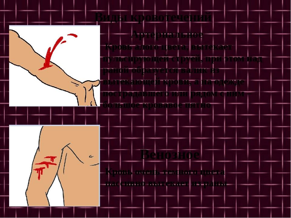 Виды кровотечений Кровь алого цвета, вытекает пульсирующей струёй, при этом...