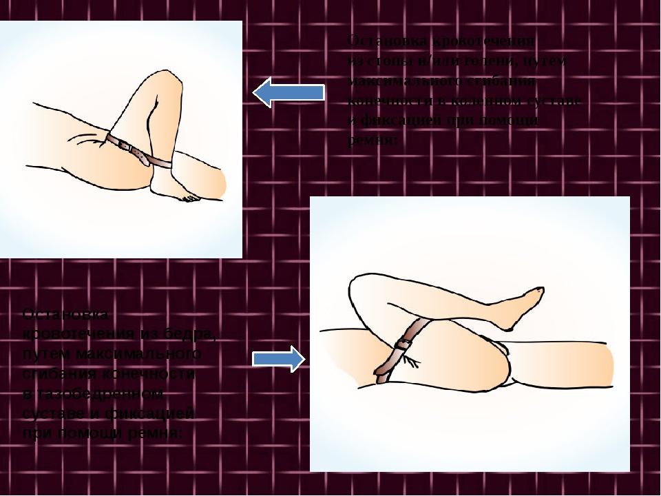 Остановка кровотечения изстопы и/или голени, путем максимального сгибания к...