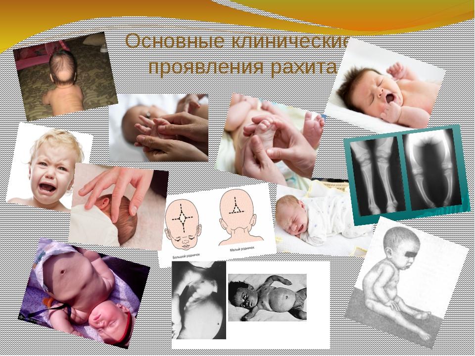 Основные клинические проявления рахита