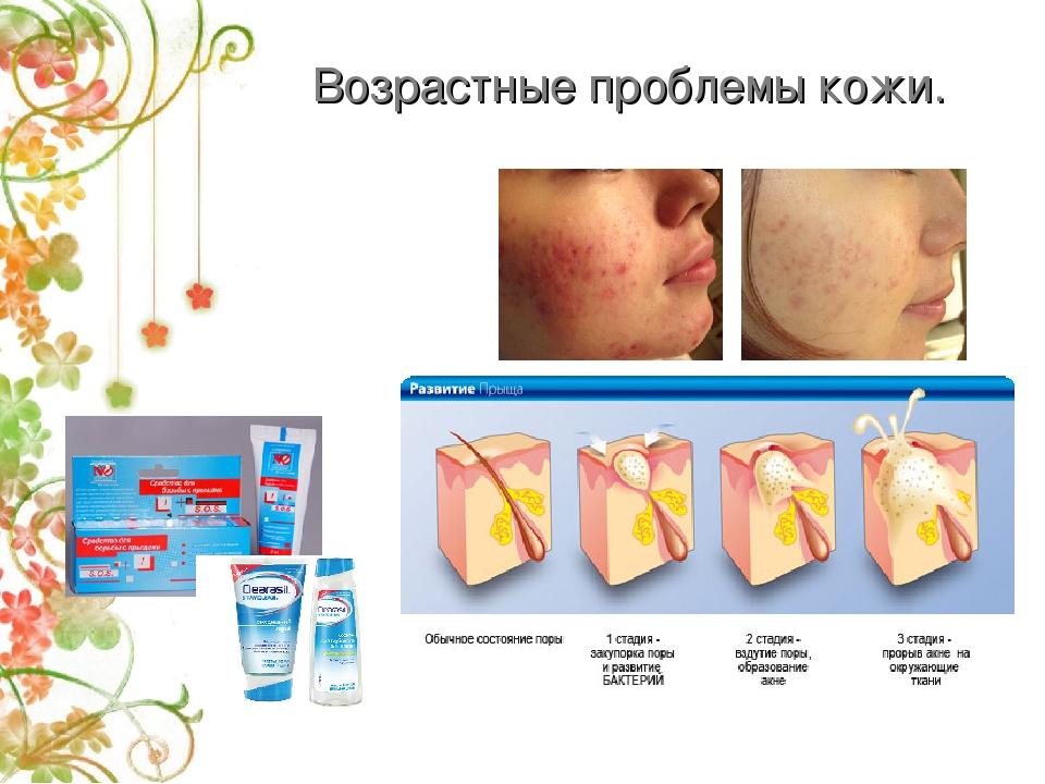 Возрастные проблемы кожи.