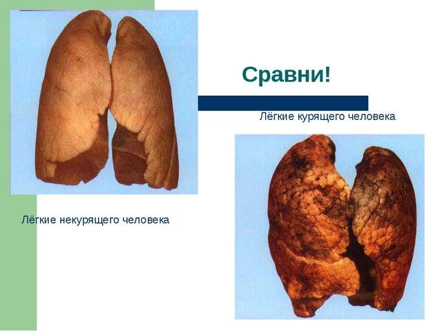 Лёгкие некурящего человека Лёгкие курящего человека Сравни!