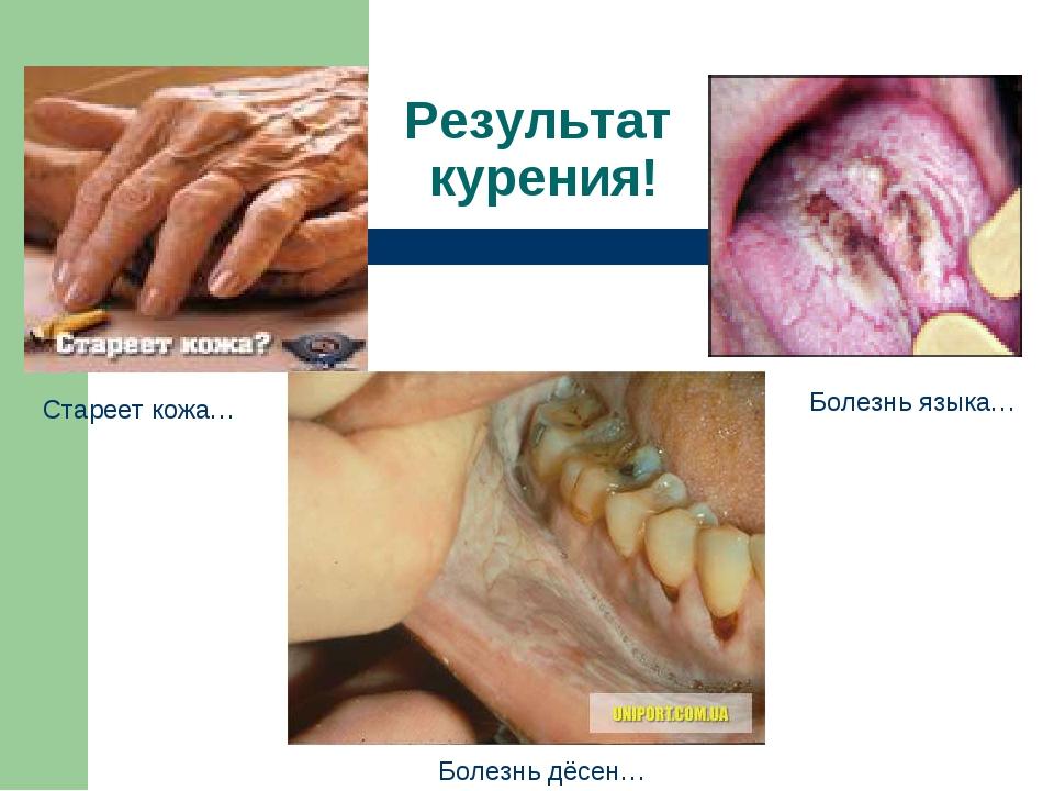 Стареет кожа… Болезнь языка… Болезнь дёсен… Результат курения!