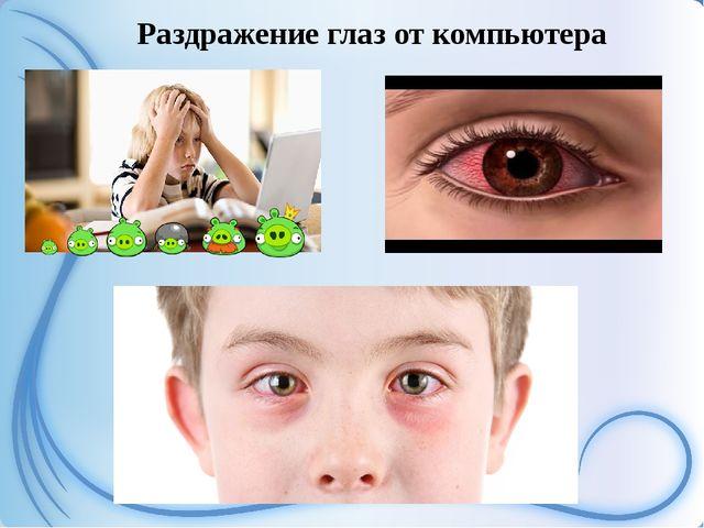 Раздражение глаз от компьютера