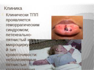 Клиника Клинически ТПП проявляется геморрагическим синдромом; петехеально-пят