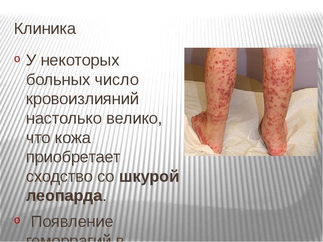 Клиника У некоторых больных число кровоизлияний настолько велико, что кожа пр...