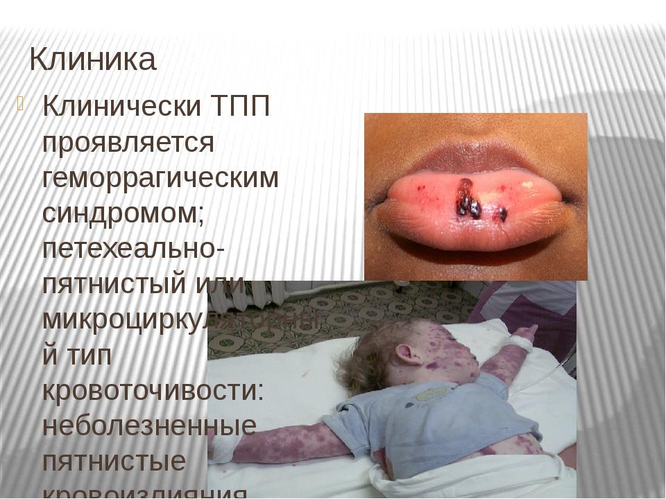 Клиника Клинически ТПП проявляется геморрагическим синдромом; петехеально-пят...