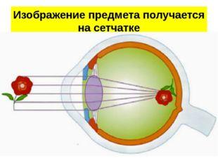 Изображение предмета получается на сетчатке